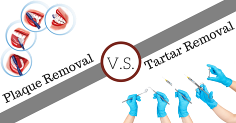 Plaque vs. Tartar: What's The Difference?