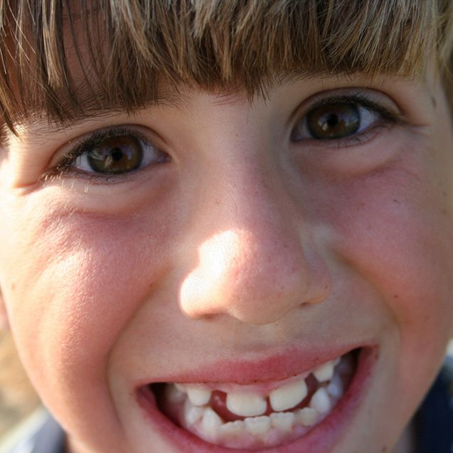 Interceptive Orthodontics: The Basics